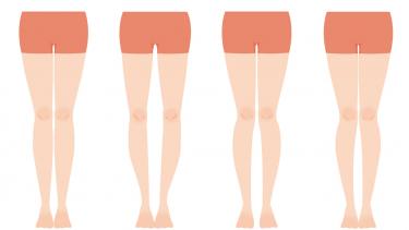 股関節痛とO脚