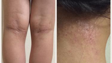アトピー性皮膚炎改善に向けて